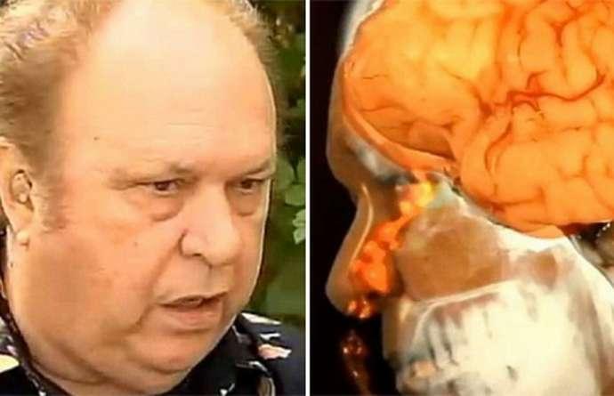Мужчина не подозревал, что у него вытекает мозг